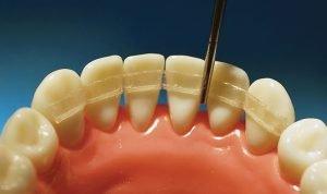 Шинирование зубов стекловолокном - 3    https://complex-dent.com.ua