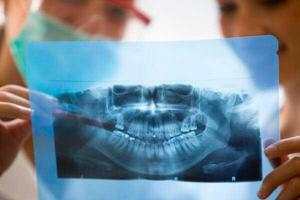 Ортопантомограмма -3  | https://complex-dent.com.ua