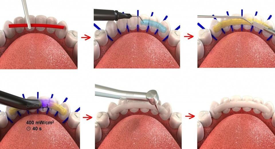 Шинирование зубов стекловолокном - 1    https://complex-dent.com.ua