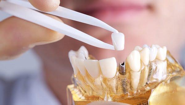 Кто такой стоматолог-ортопед?   https://complex-dent.com.ua