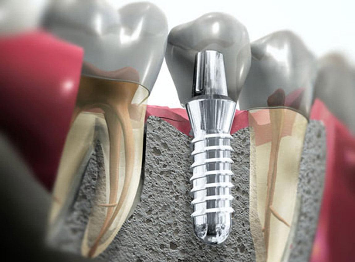 Какие импланты для зубов лучше? - 6 | https://complex-dent.com.ua/