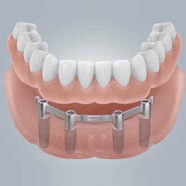Какие импланты для зубов лучше? - 3 | https://complex-dent.com.ua/