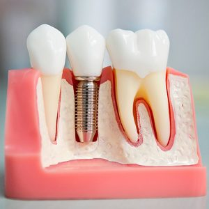 Стоматологическая Клиника Complex Dent - 18 | https://complex-dent.com.ua