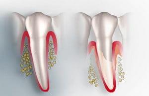 Под коронкой болит зуб – что делать и как быть?   https://complex-dent.com.ua
