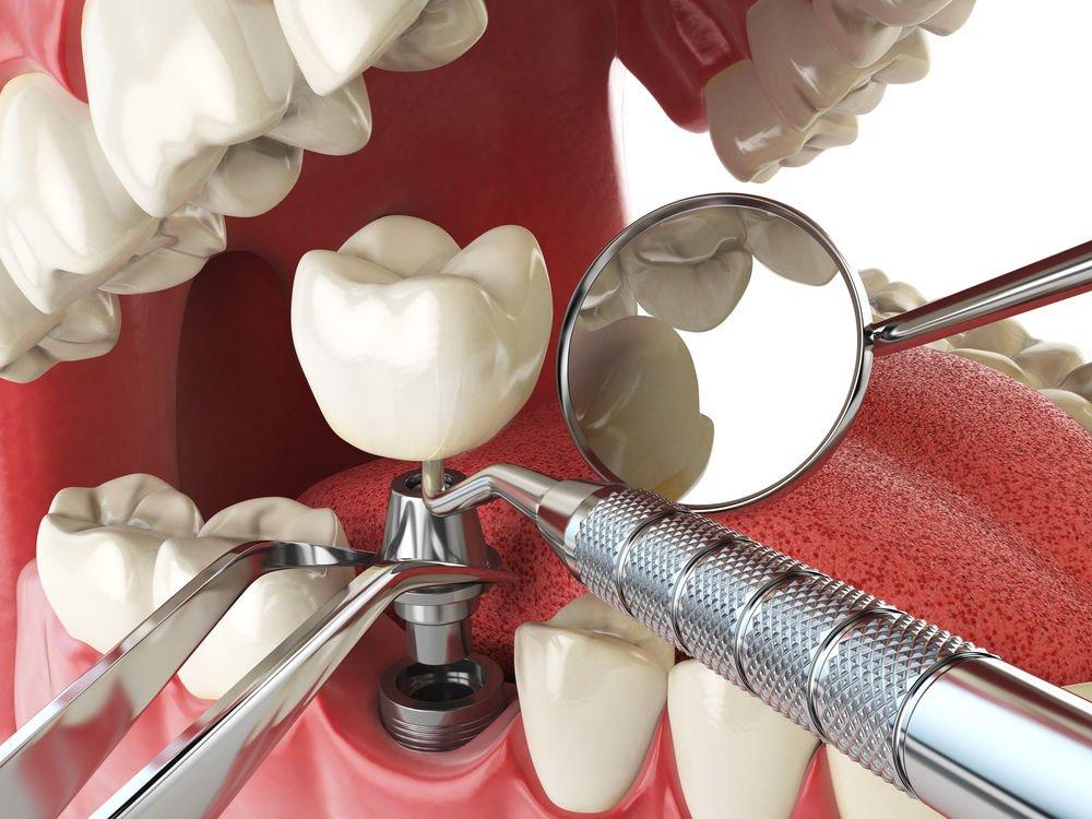 Какие импланты для зубов лучше? - 5 | https://complex-dent.com.ua/