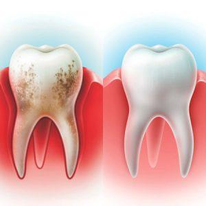Стоматологическая Клиника Complex Dent - 19 | https://complex-dent.com.ua