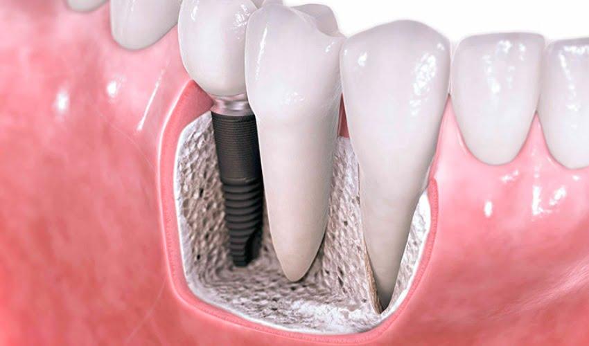 Какие импланты для зубов лучше? - 1 | https://complex-dent.com.ua/