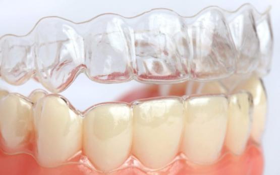 Элайнеры (капы) для выравнивания зубов - 4 | https://complex-dent.com.ua/