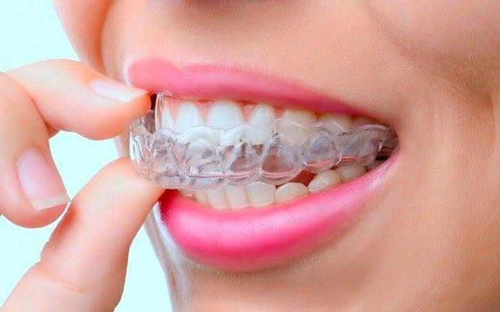 Элайнеры для зубов - complex-dent.com.ua