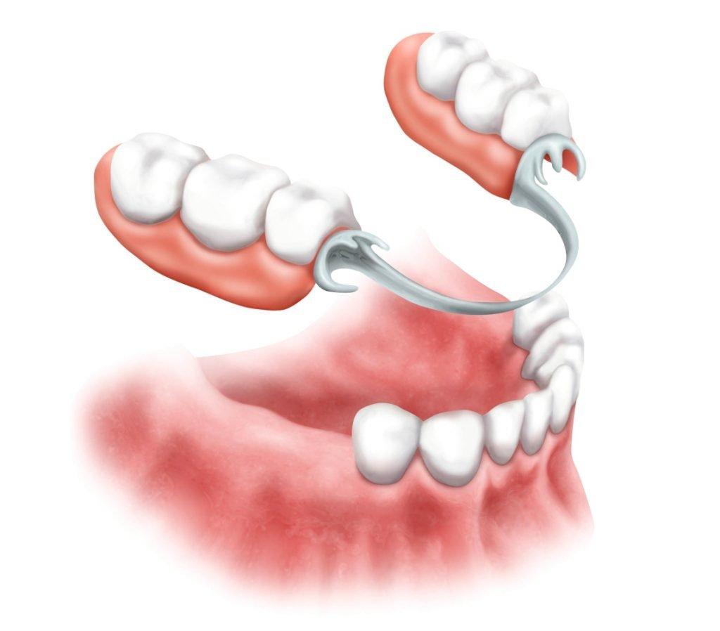 Дискомфорт после протезирования зубов - 2 | https://complex-dent.com.ua/