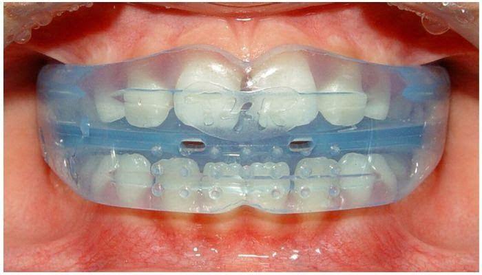 Элайнеры (капы) для выравнивания зубов - 1 | https://complex-dent.com.ua/