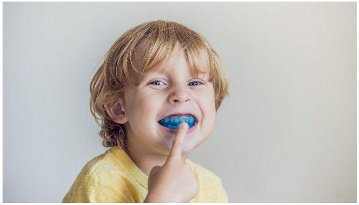 Элайнеры (капы) для выравнивания зубов | https://complex-dent.com.ua/