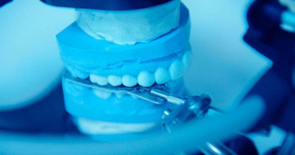 Дискомфорт после протезирования зубов - 3 | https://complex-dent.com.ua/