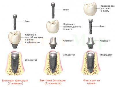 Коронки на имплантах - 4   https://complex-dent.com.ua/
