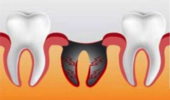 Сколько длится боль после удаления зуба? - 1   https://complex-dent.com.ua