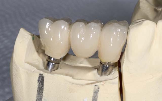 Зубной мост или имплант: что выбрать? - 1    https://complex-dent.com.ua